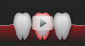 Tooth Replacement Townsville